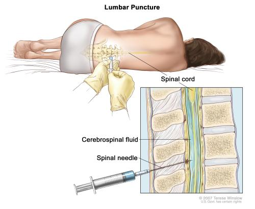small resolution of enlarge lumbar puncture