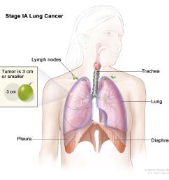 stage ia lung cancer the tumor is in the lung only and is 3 centimeters or smaller cancer has not spread to the lymph nodes  [ 3000 x 2550 Pixel ]