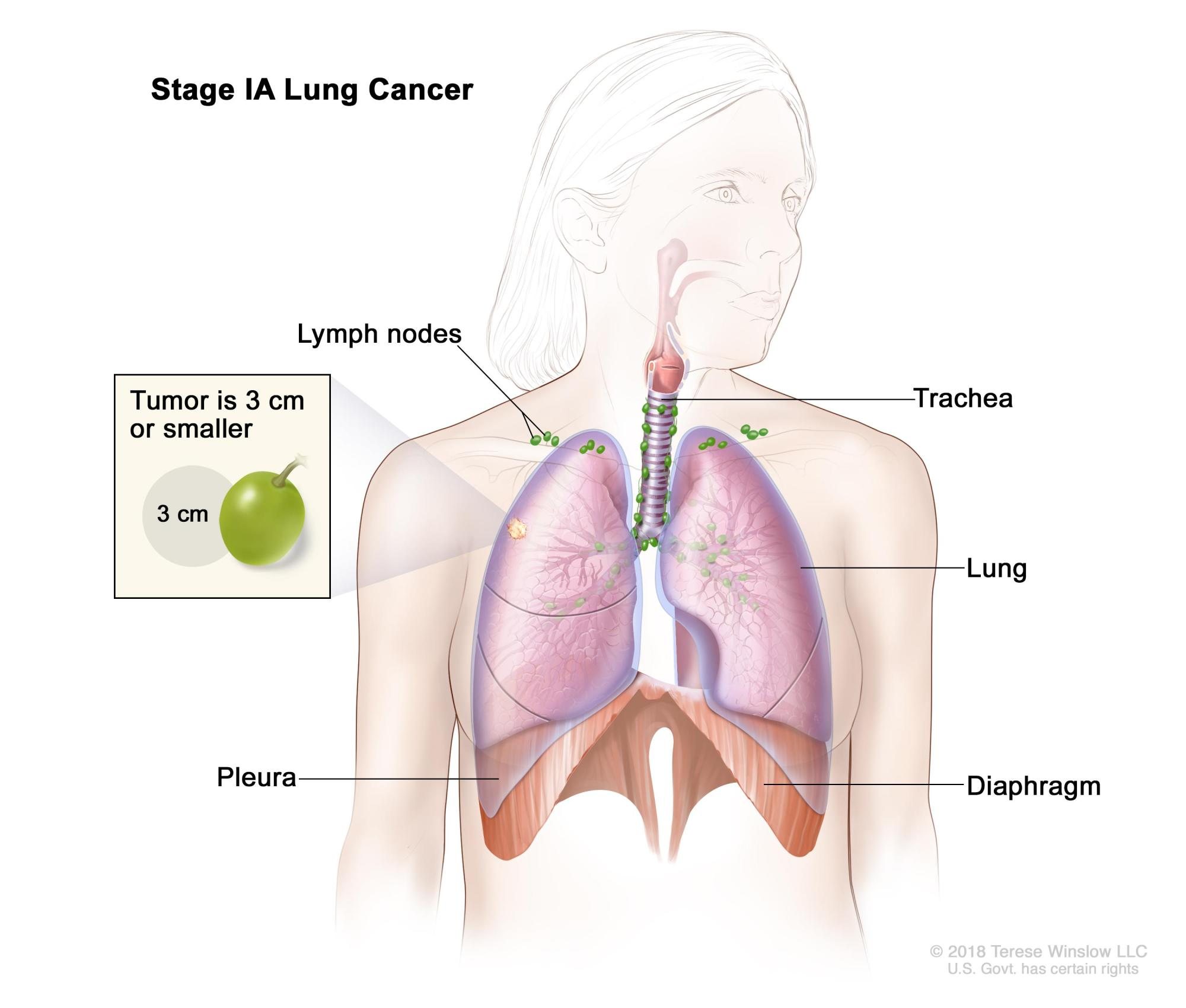 hight resolution of stage ia lung cancer the tumor is in the lung only and is 3 centimeters or smaller cancer has not spread to the lymph nodes