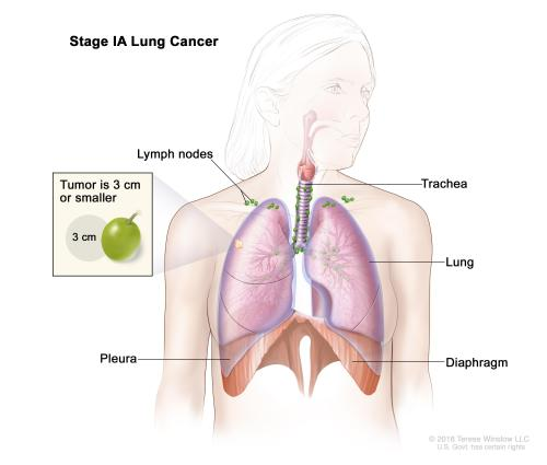 small resolution of stage ia lung cancer the tumor is in the lung only and is 3 centimeters or smaller cancer has not spread to the lymph nodes