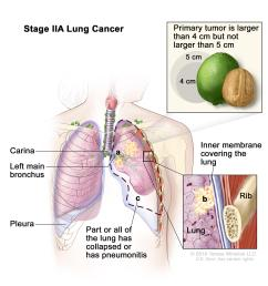 two panel drawing of stage iia non small cell lung cancer first panel [ 4260 x 2764 Pixel ]