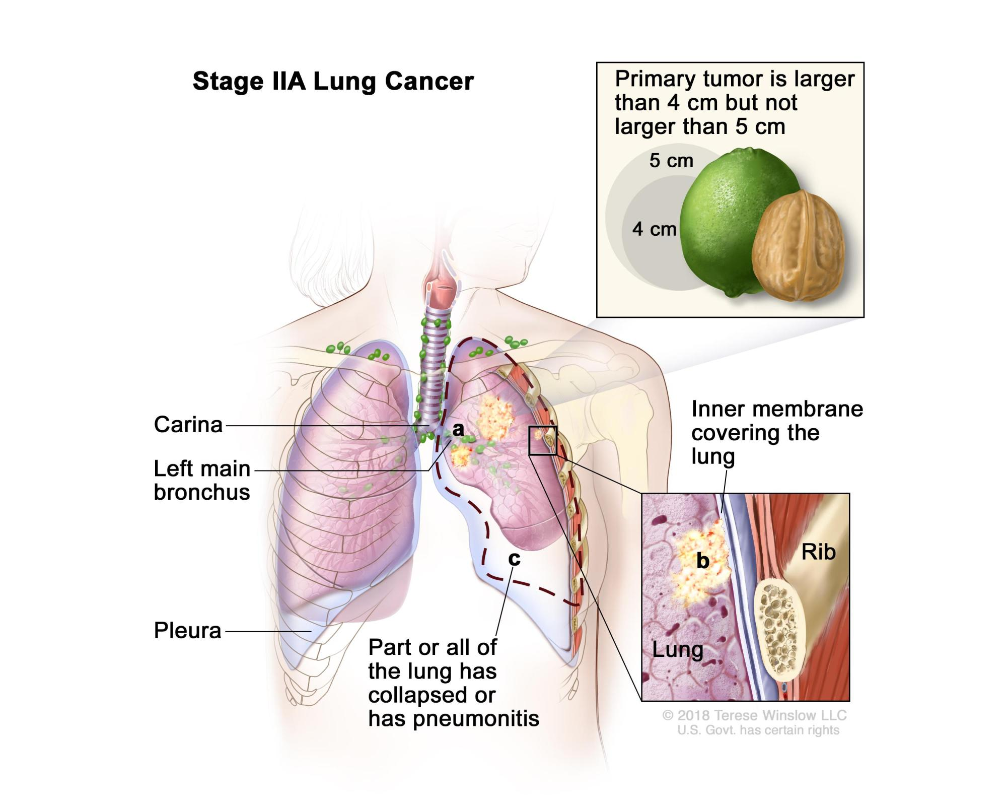 hight resolution of two panel drawing of stage iia non small cell lung cancer first panel
