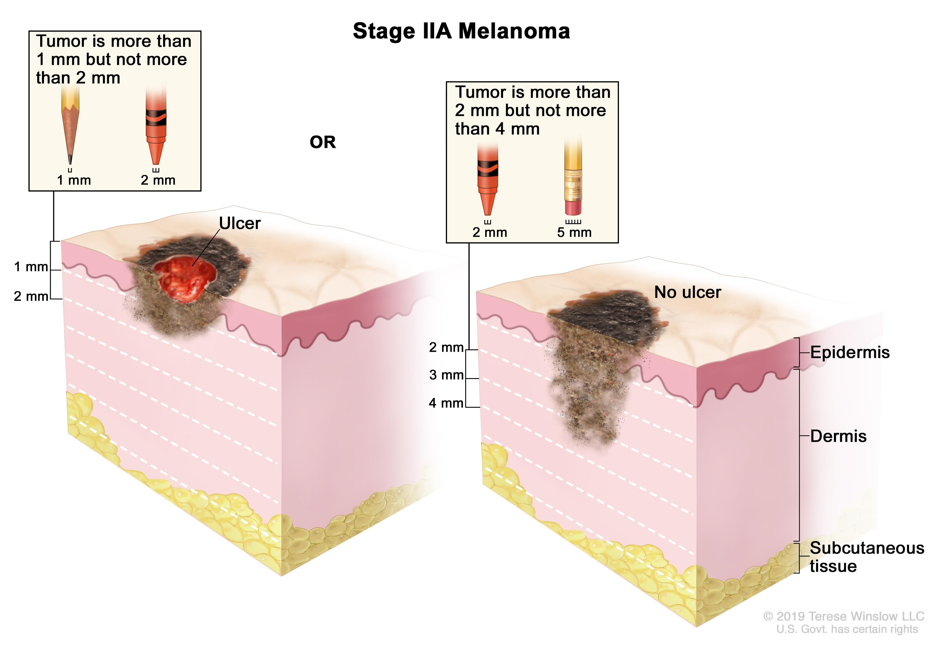 distant metastases table 4 tnm definitions for stage ii melanoma