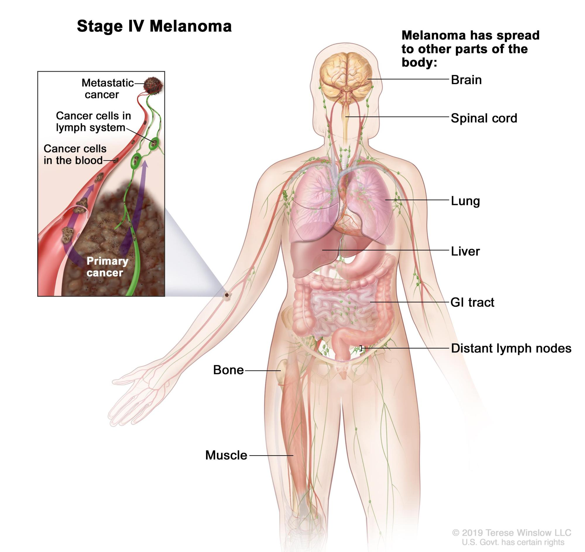 hight resolution of body diagram skin cancer wire management wiring diagram body diagram skin cancer