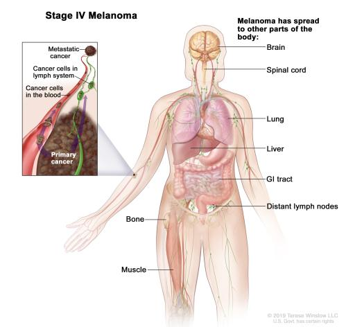 small resolution of body diagram skin cancer wire management wiring diagram body diagram skin cancer