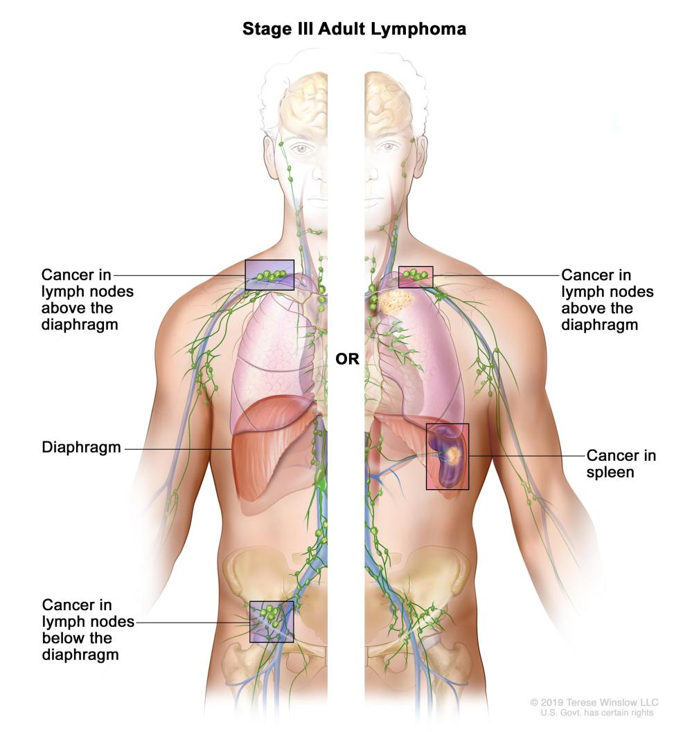 medium resolution of cancer is found in groups of lymph nodes both above and below the diaphragm or in a group of lymph nodes above the diaphragm and in the spleen
