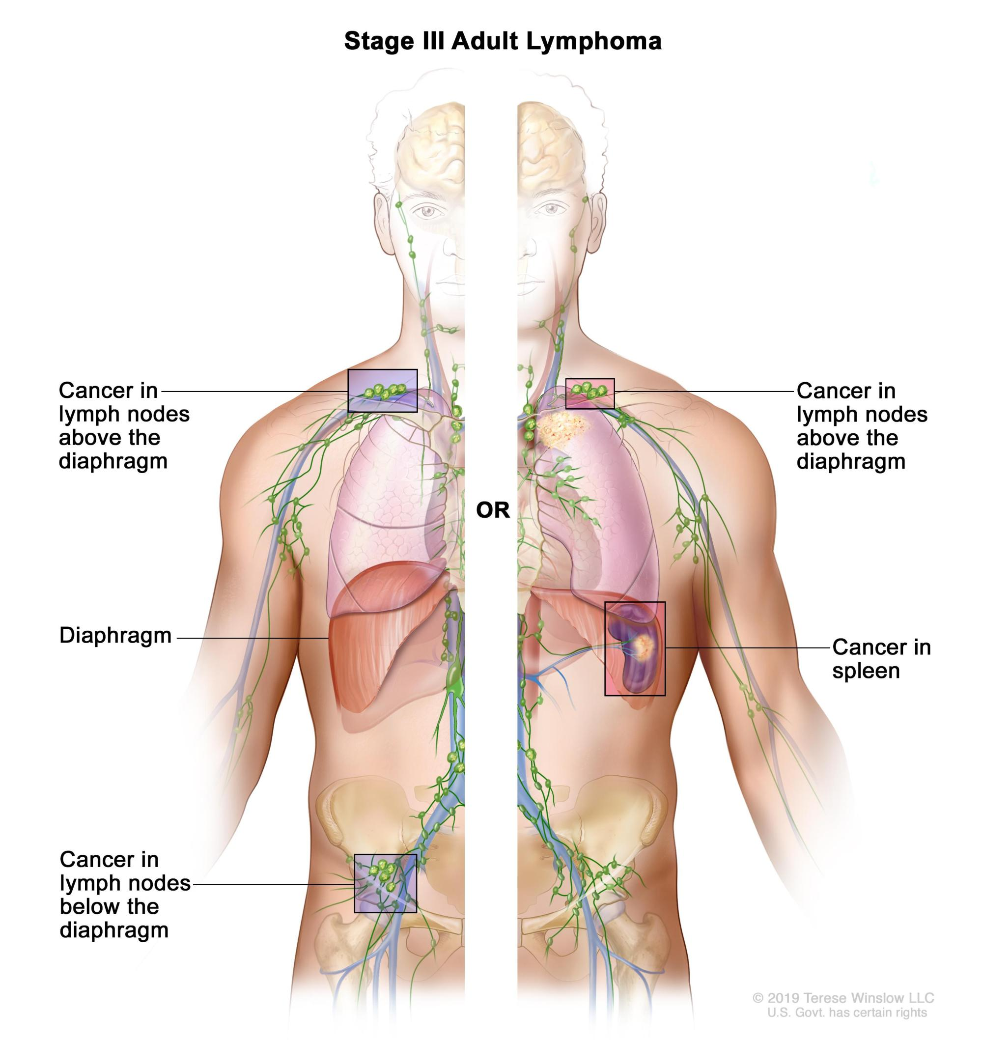 hight resolution of cancer is found in groups of lymph nodes both above and below the diaphragm or in a group of lymph nodes above the diaphragm and in the spleen