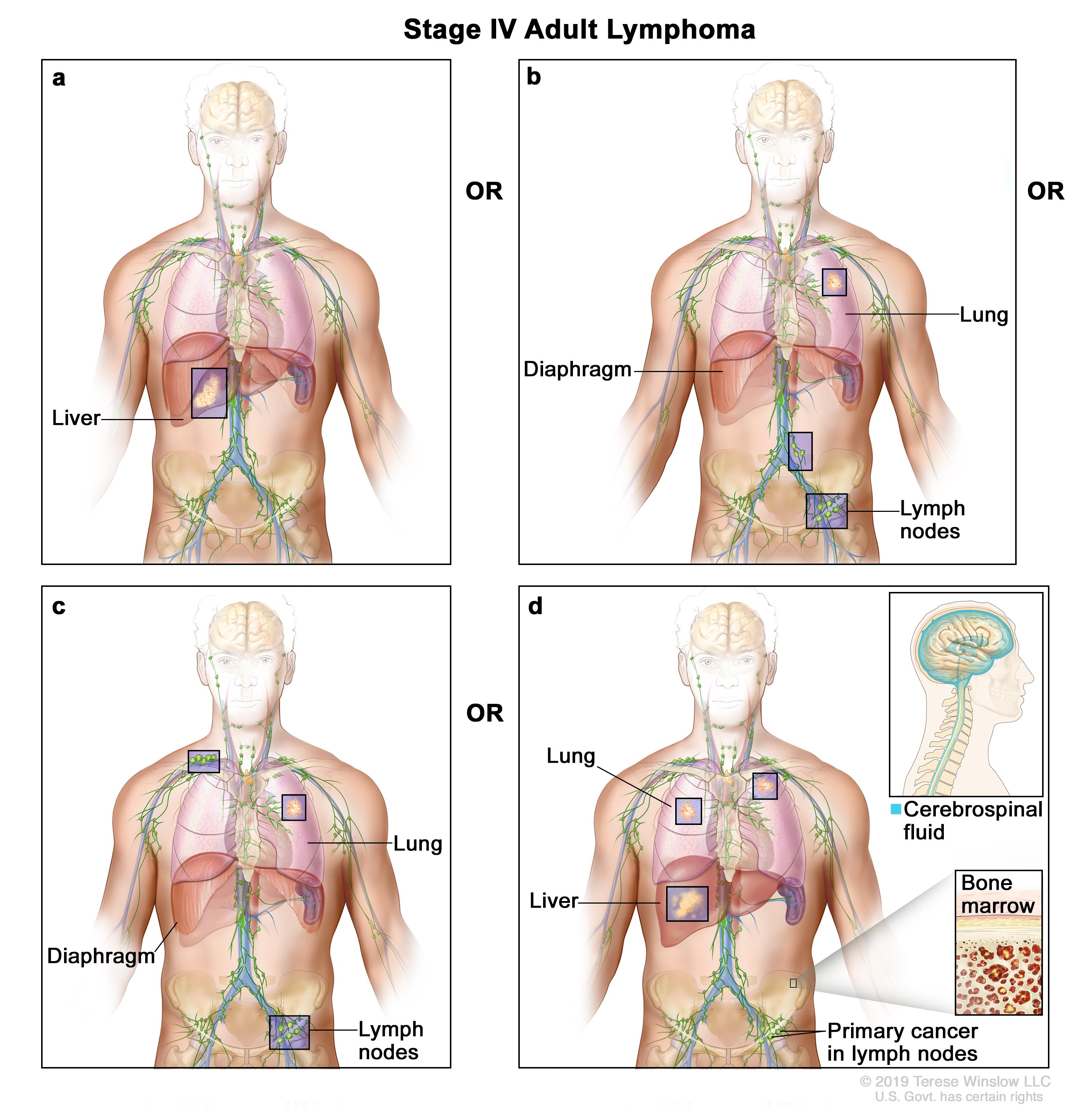 location of lymph nodes in armpit diagram 220 electrical wiring adult non hodgkin lymphoma treatment pdq patient