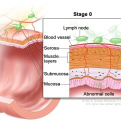 stage 0 colon carcinoma in situ abnormal cells are shown in the mucosa of the colon wall  [ 2100 x 1950 Pixel ]