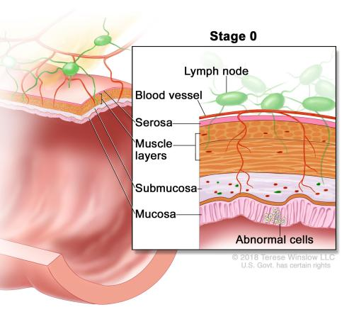 small resolution of stage 0 colon carcinoma in situ abnormal cells are shown in the mucosa of the colon wall