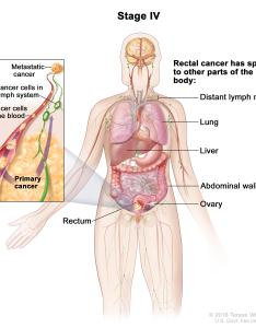 The cancer has spread through blood and lymph nodes to other parts of body such as lung liver abdominal wall or ovary also rectal treatment pdq  patient version national rh