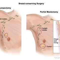 Location Of Lymph Nodes In Armpit Diagram Auto Transformer Male Breast Cancer Treatment Pdq Patient Version