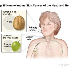 Location Of Lymph Nodes In Armpit Diagram River Drainage Basin Skin Cancer Treatment Pdq Patient Version National