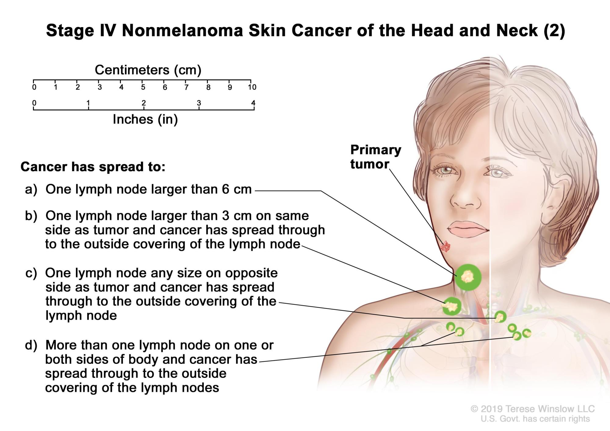 hight resolution of stage iv nonmelanoma skin cancer 2 drawing shows a primary tumor in one