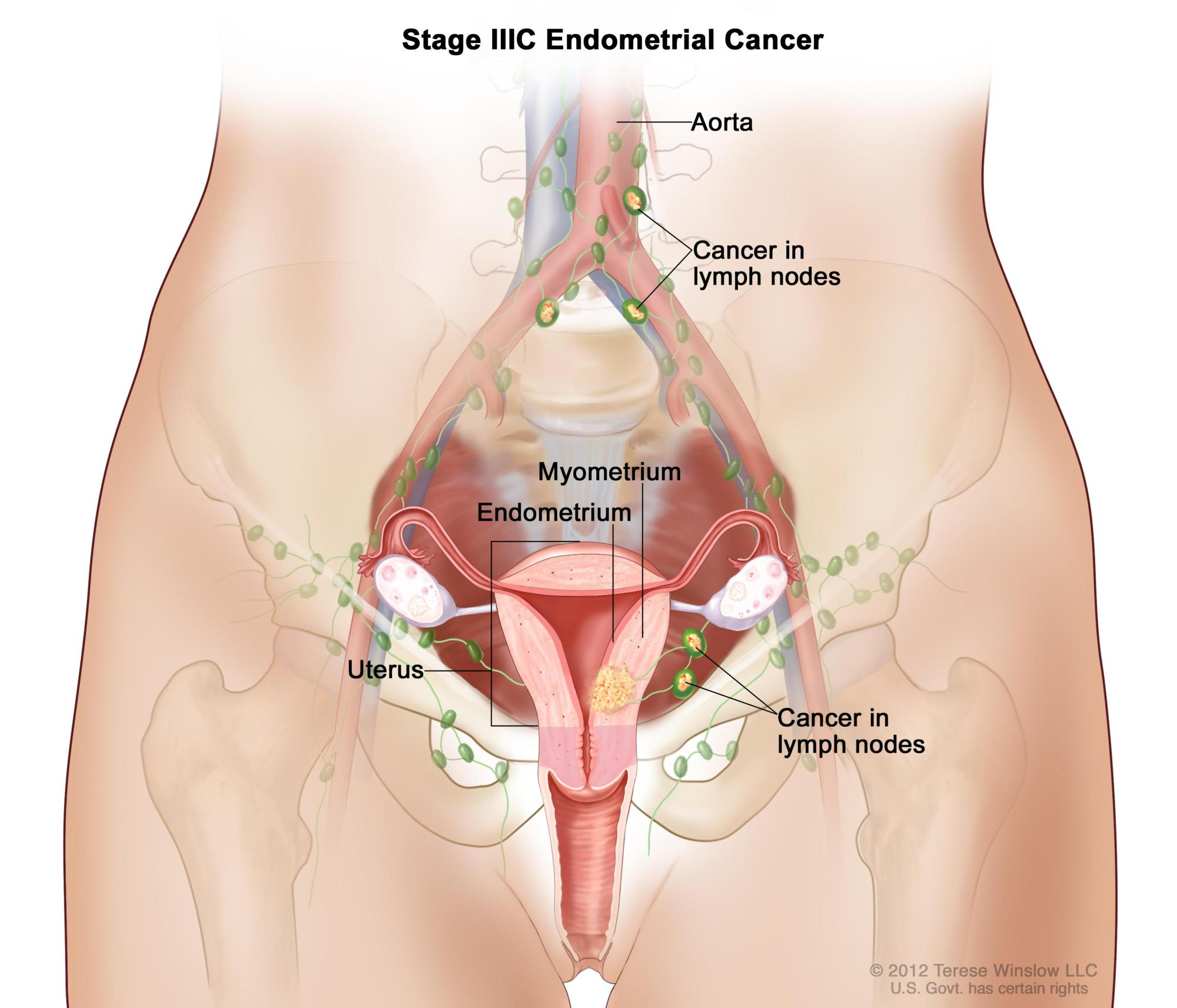 hight resolution of endometrial cancer treatment pdq u2013patient version nationalfemale groin lymph node diagram