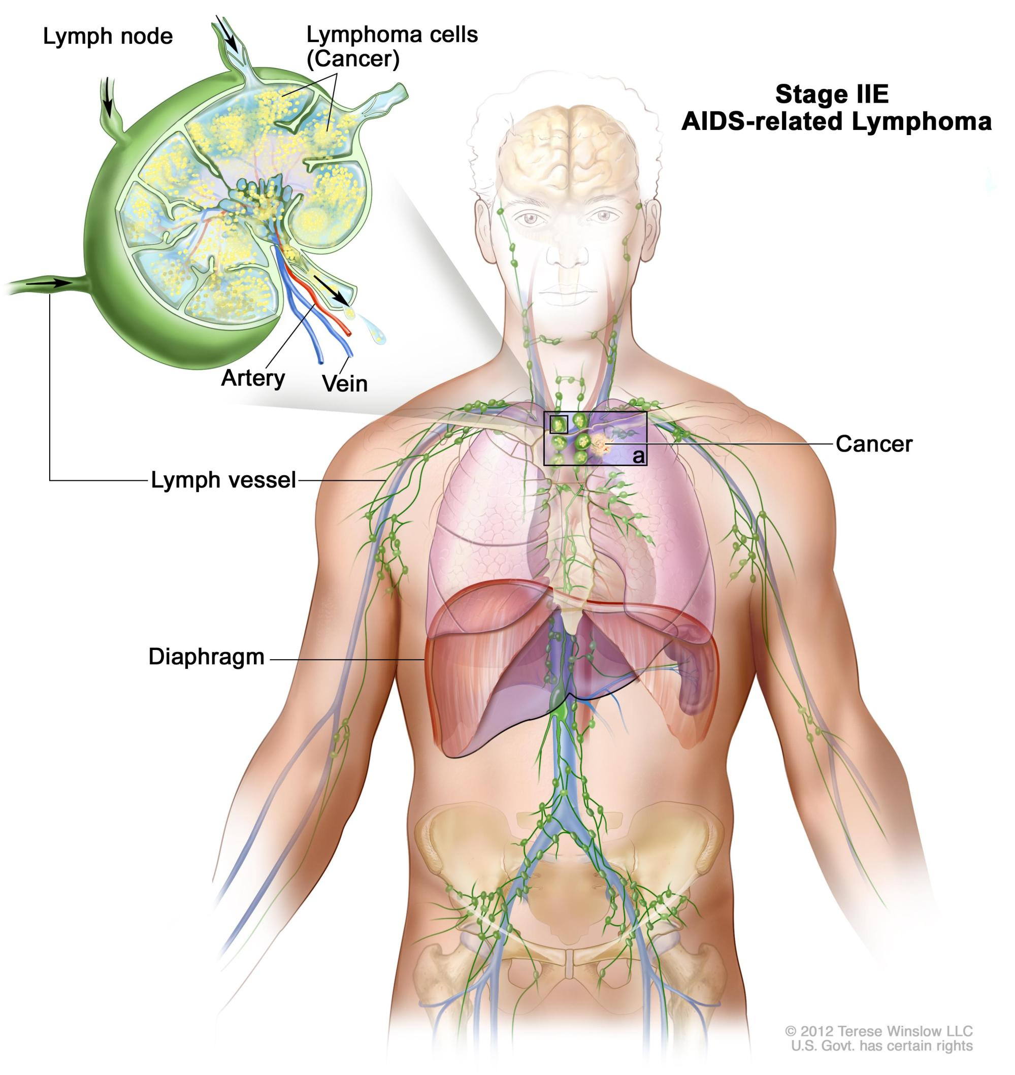 hight resolution of stage iie aids related lymphoma drawing shows cancer in one lymph node group above