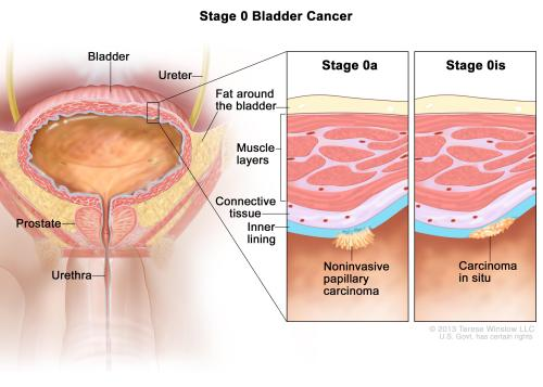 small resolution of enlarge stage 0 bladder