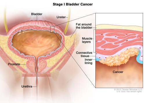 small resolution of enlarge stage i bladder