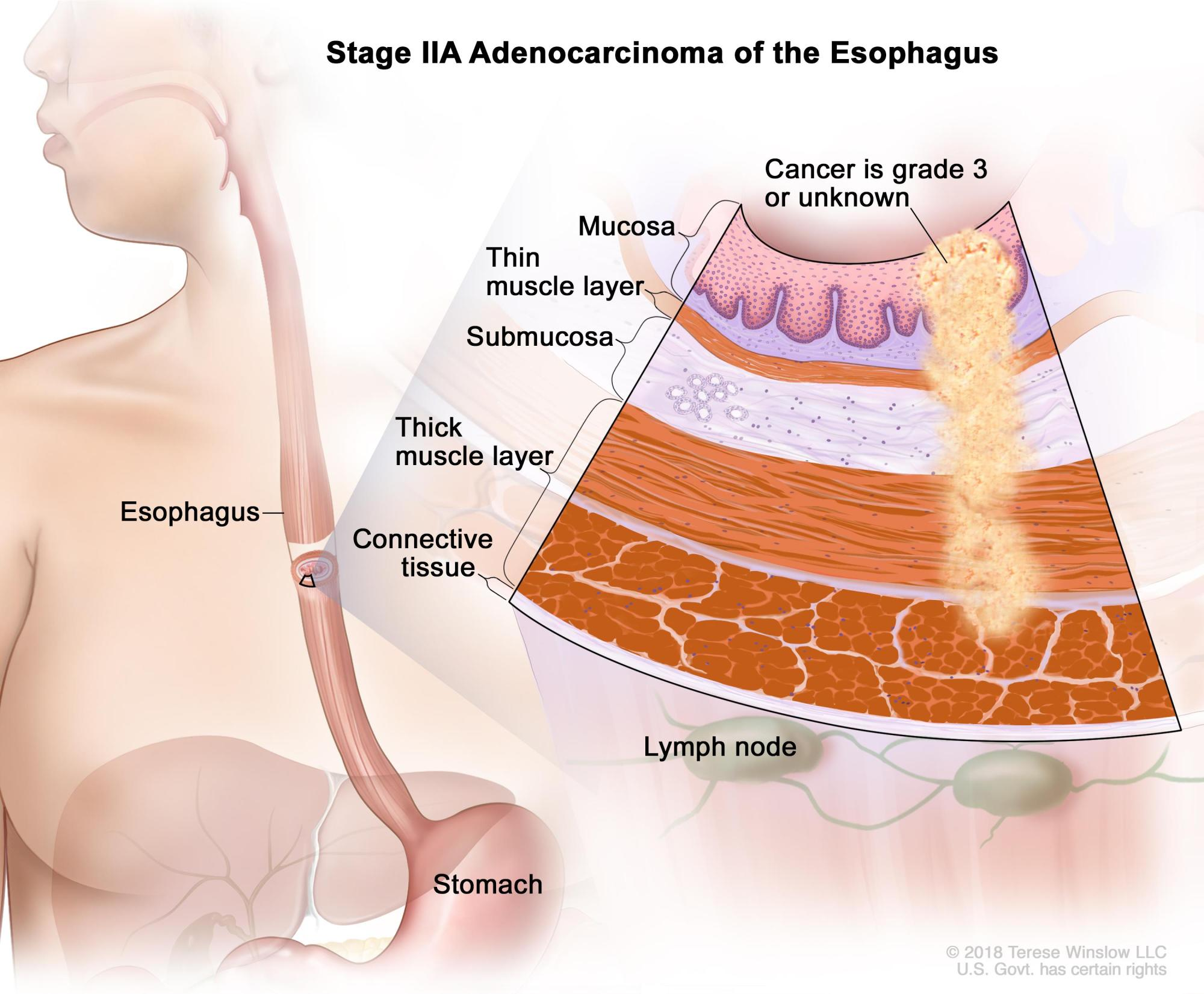 hight resolution of diagram of esophagus cancer wiring diagram expert diagram of esophageal cancer