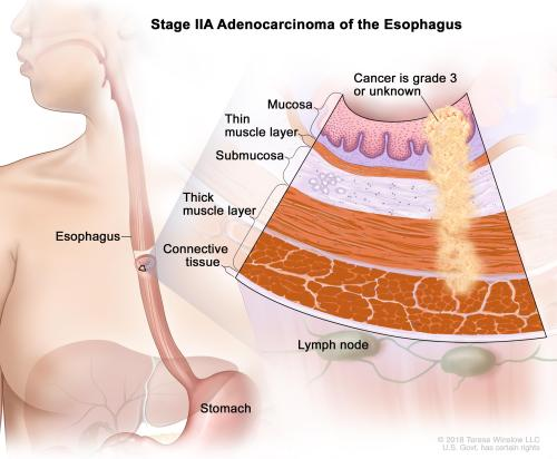 small resolution of diagram of esophagus cancer wiring diagram expert diagram of esophageal cancer