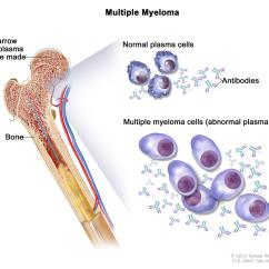 Bone Marrow Cell Diagram Of A Standard Keyboard Plasma Neoplasms Including Multiple Myeloma