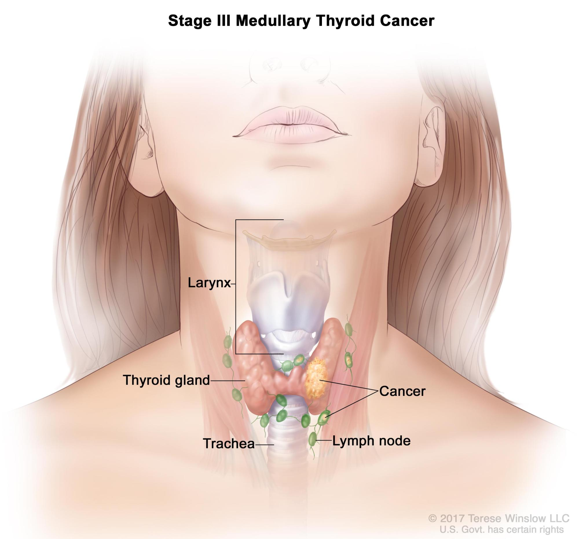 hight resolution of the tumor is any size and cancer may have spread from the thyroid to nearby muscles in the neck cancer has spread to lymph nodes on one