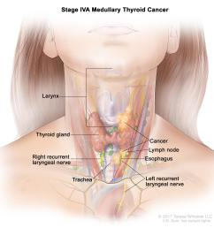 the tumor is any size and cancer has spread from the thyroid to soft tissue under the skin the esophagus the trachea the larynx or the recurrent  [ 2850 x 2880 Pixel ]