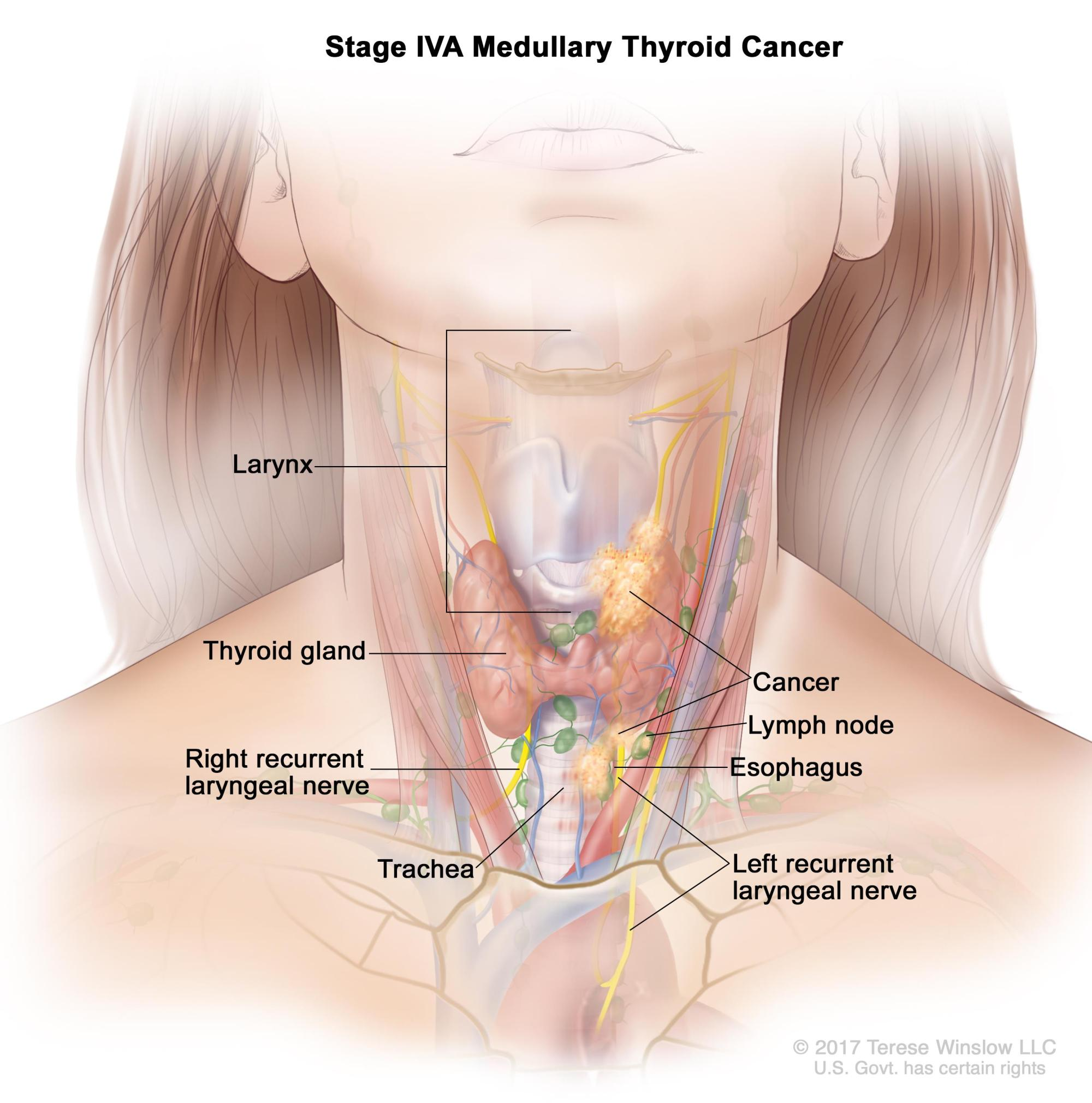 hight resolution of the tumor is any size and cancer has spread from the thyroid to soft tissue under the skin the esophagus the trachea the larynx or the recurrent