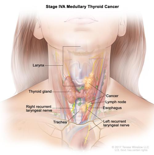 small resolution of the tumor is any size and cancer has spread from the thyroid to soft tissue under the skin the esophagus the trachea the larynx or the recurrent