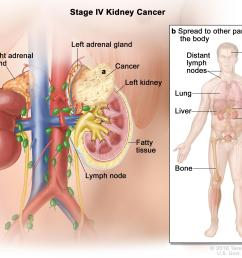 stage iv kidney cancer cancer has spread a beyond the layer of fatty tissue around the kidney and may have spread into the adrenal gland above the kidney  [ 3150 x 2400 Pixel ]