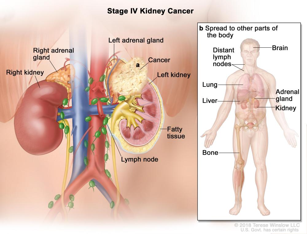 medium resolution of stage iv kidney cancer cancer has spread a beyond the layer of fatty tissue around the kidney and may have spread into the adrenal gland above the kidney