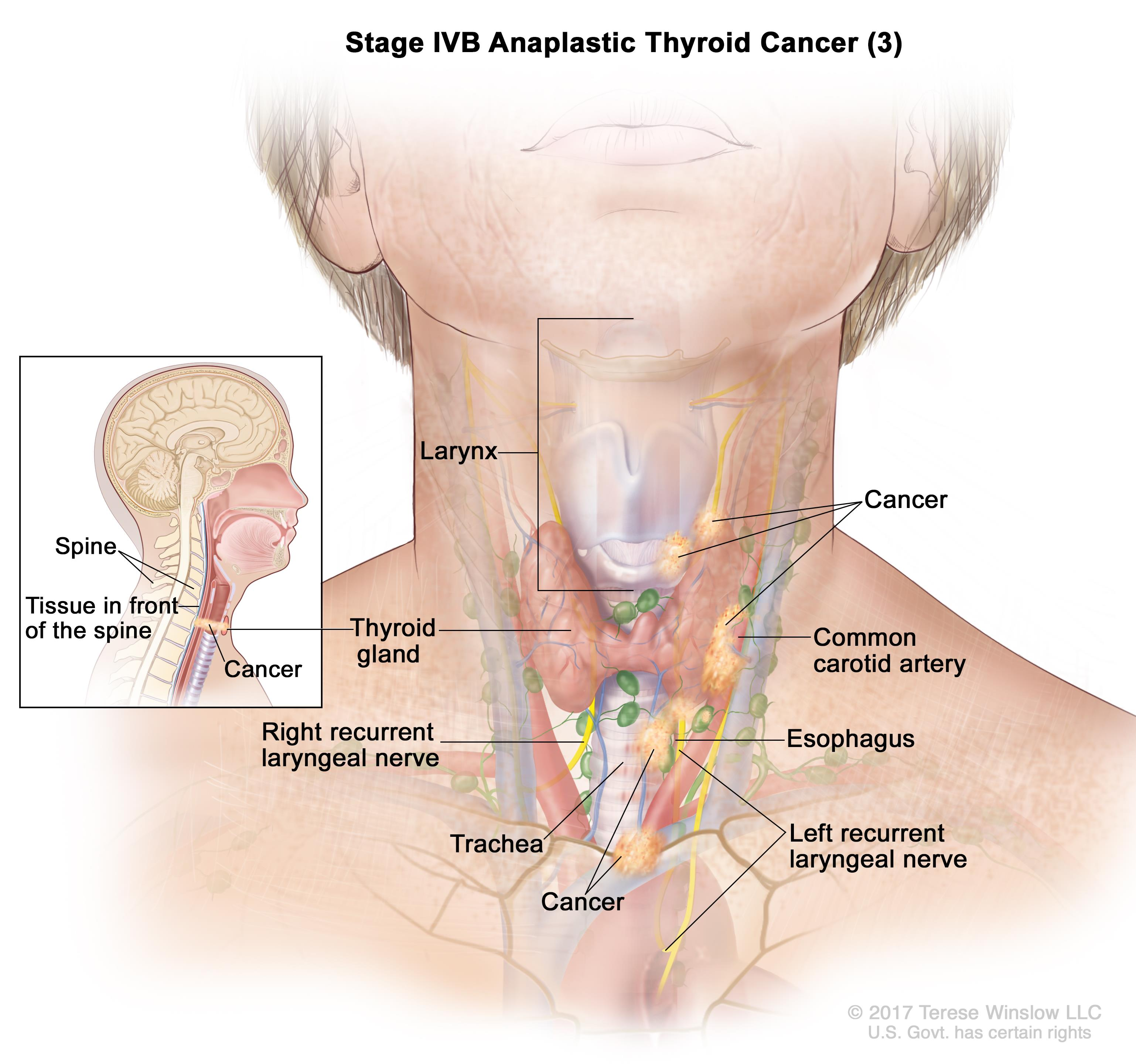 thyroid and larynx anatomy diagram intex home theatre wiring cancer treatment (pdq®)—patient version - national institute