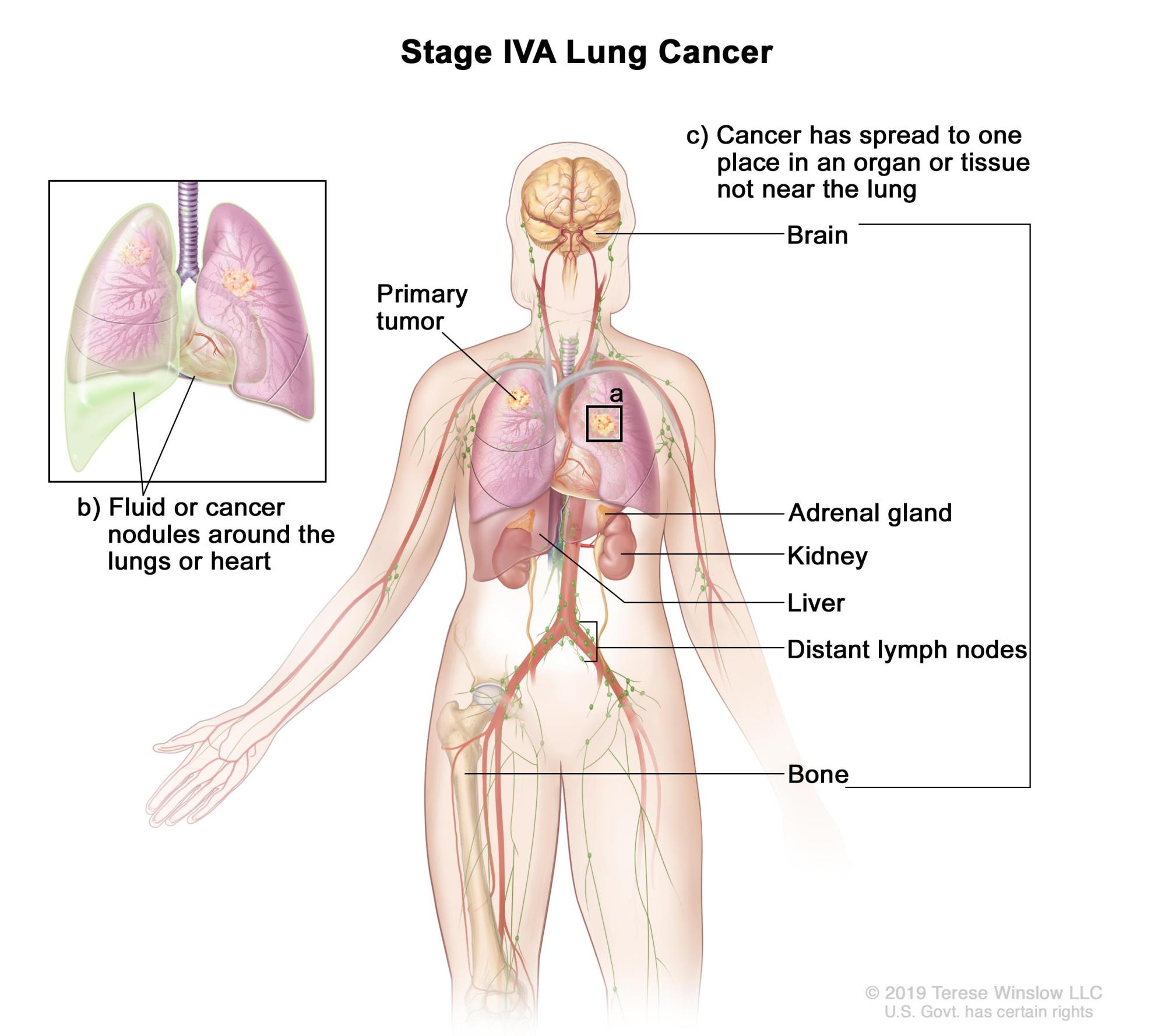 hight resolution of stage iva lung cancer the tumor may be any size and cancer may have spread to the lymph nodes one or more of the following is found a there are one or