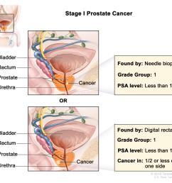 stage i prostate cancer cancer is found in the prostate only the cancer is not felt during a digital rectal exam and is found by needle biopsy done for  [ 3000 x 2430 Pixel ]