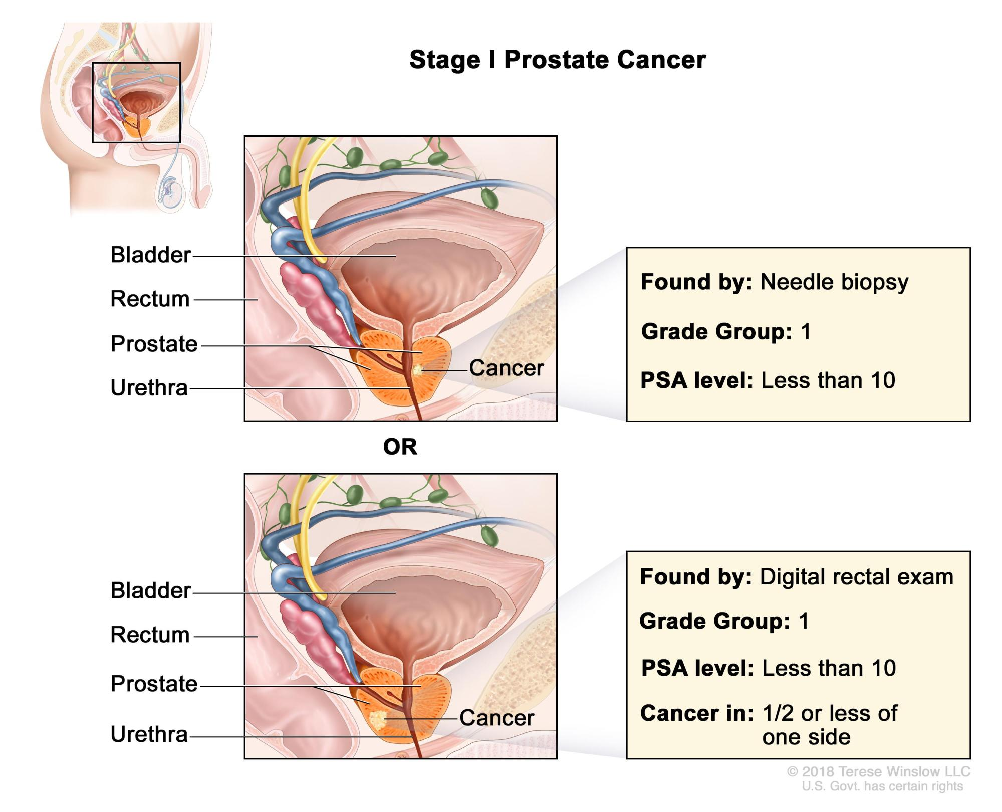 hight resolution of stage i prostate cancer cancer is found in the prostate only the cancer is not felt during a digital rectal exam and is found by needle biopsy done for