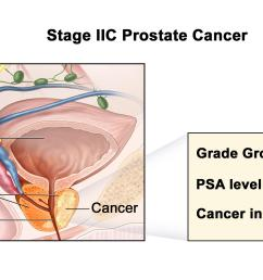stage iic prostate cancer cancer is found in the prostate only cancer is found in one or both sides of the prostate the prostate specific antigen level  [ 3000 x 1350 Pixel ]