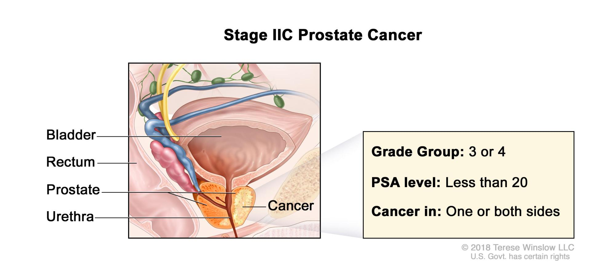hight resolution of stage iic prostate cancer cancer is found in the prostate only cancer is found in one or both sides of the prostate the prostate specific antigen level