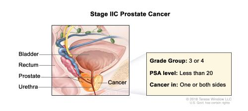 small resolution of stage iic prostate cancer cancer is found in the prostate only cancer is found in one or both sides of the prostate the prostate specific antigen level