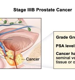 cancer has spread from the prostate to the seminal vesicles or to nearby tissue or organs such as the rectum bladder or pelvic wall  [ 3000 x 1350 Pixel ]