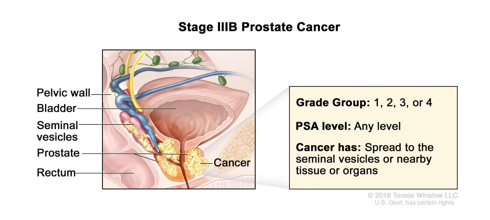 medium resolution of cancer has spread from the prostate to the seminal vesicles or to nearby tissue or organs such as the rectum bladder or pelvic wall