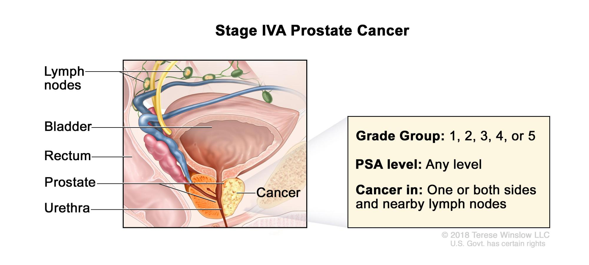 hight resolution of stage iva prostate cancer cancer is found in one or both sides of the prostate and may have spread to the seminal vesicles or to nearby tissue or organs