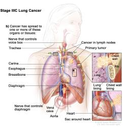 stage iiic lung cancer the tumor may be any size and cancer has spread to lymph nodes above the collarbone on the same side of the chest as the primary  [ 3000 x 2764 Pixel ]