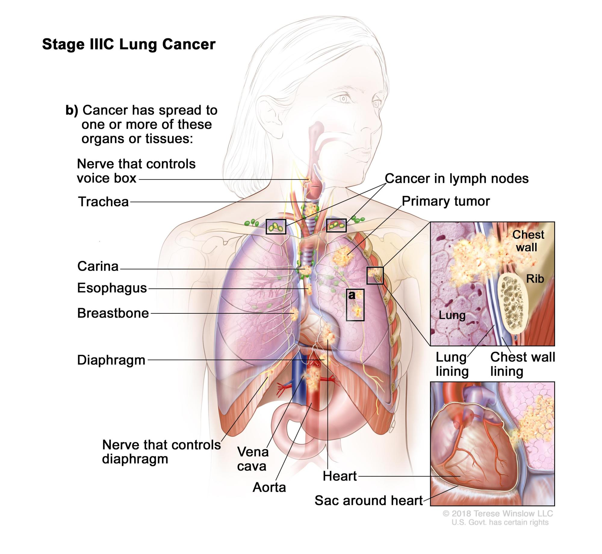hight resolution of stage iiic lung cancer the tumor may be any size and cancer has spread to lymph nodes above the collarbone on the same side of the chest as the primary