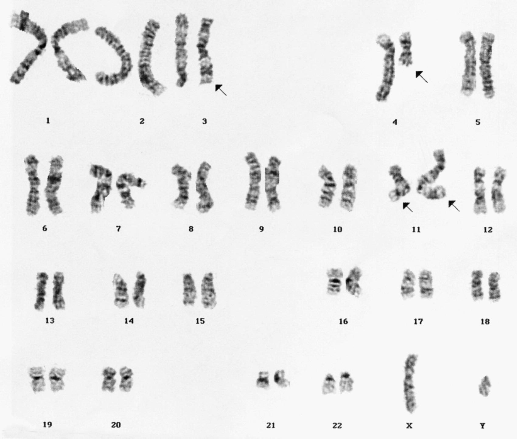 A T 4 11 Q21 P15 In A Case Of T Cell Lymphoma And A Case