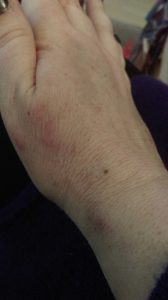 Cancer Treatment Veins
