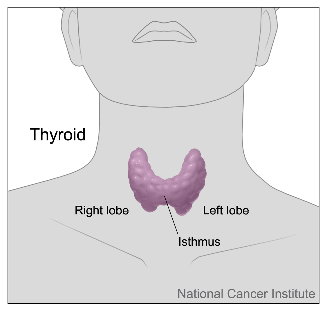 hight resolution of thyroid cancer