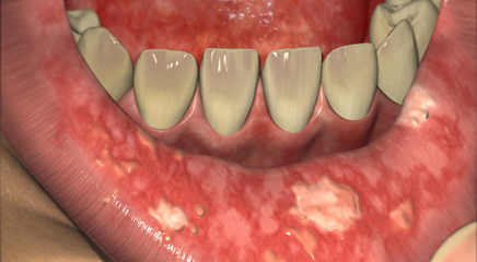 Image result for oral mucositis
