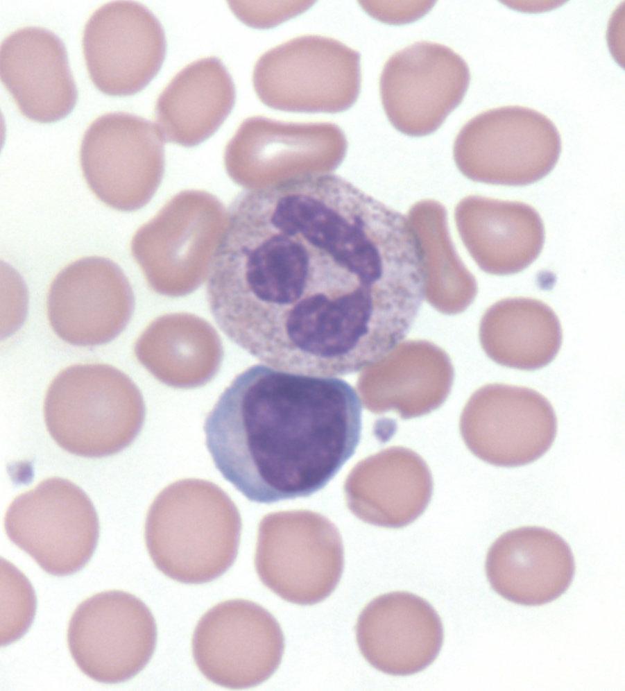 Leukocytosis - Cancer Therapy Advisor