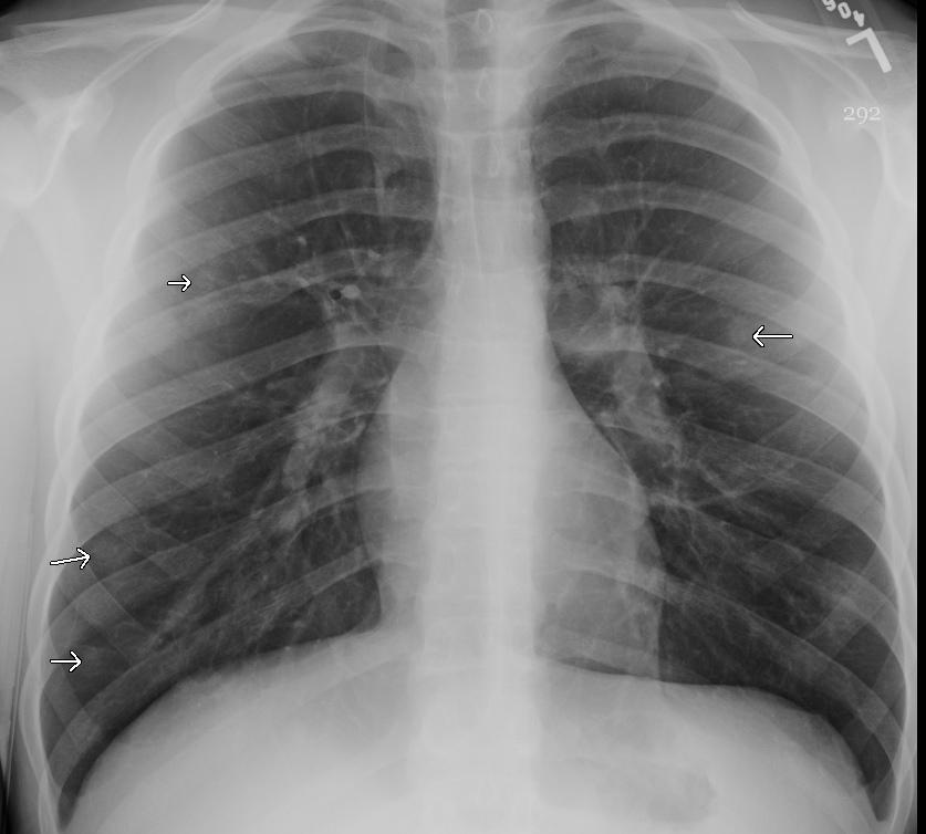 Pulmonary nodules - Cancer Therapy Advisor