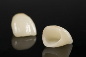 "All About Dental Crowns – Commonly Referred to as ""Caps"""